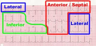 قلب همه چیز در مورد سکته های قلبی حمله قلبی یا انفارکتوس میوکارد